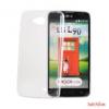 CELLECT Lumia 630/635 ultravékony szilikon hátlap,Átlátszó